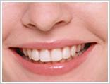 ホワイトニング 漂白 歯を白くする 白い歯